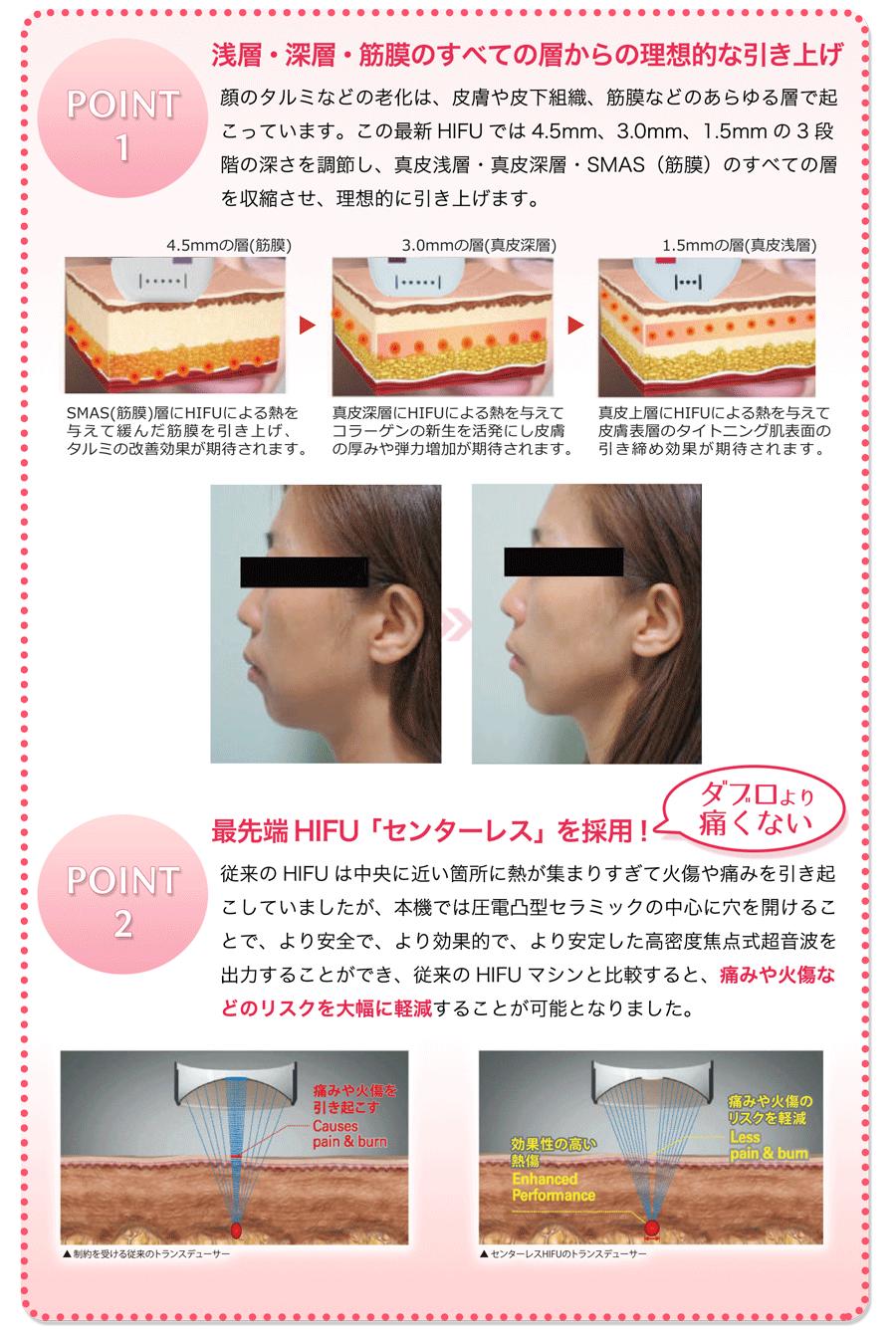 POINT1 浅層・深層・筋膜のすべての層からの理想的な引き上げ 顔のタルミなどの老化は、皮膚や皮下組織、筋膜などのあらゆる層で起こっています。この最新HIFUでは4.5mm、3.0mm、1.5mmの3段階の深さを調節し、真皮浅層・真皮深層・SMAS(筋膜)のすべての層を収縮させ、理想的に引き上げます。 最先端HIFU「センターレス」を採用! ダブロより 痛くない 従来のHIFUは中央に近い箇所に熱が集まりすぎて火傷や痛みを引き起こしていましたが、本機では圧電凸型セラミックの中心に穴を開けることで、より安全で、より効果的で、より安定した高密度焦点式超音波を出力することができ、従来のHIFUマシンと比較すると、痛みや火傷などのリスクを大幅に軽減することが可能となりました。