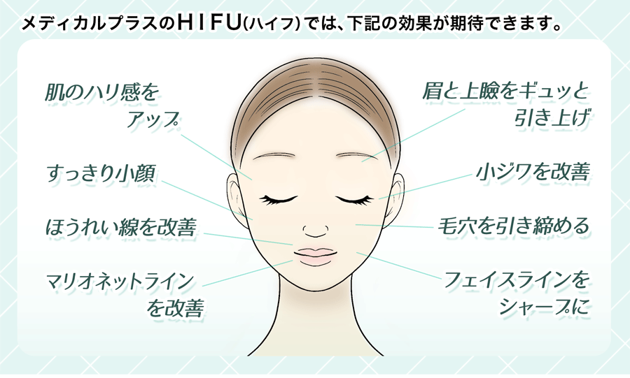 メディカルプラス のHIFU(ハイフ)では、下記の効果が期待できます。 肌のハリ感をアップ スッキリ小顔 ほうれい線を改善 マリオネットラインを改善 眉と上瞼をぎゅっと引き上げ 小じわを改善 フェイスラインをシャープに