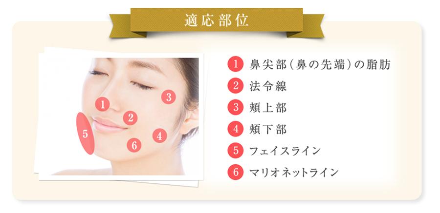 適応部位 鼻尖部(鼻の先) 法令線 頬上部 頬下部 フェイスライン マリオネットライン